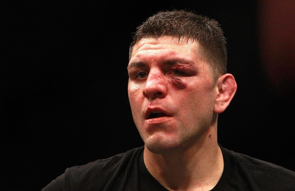 Nick Diaz looks beat up after a fight.