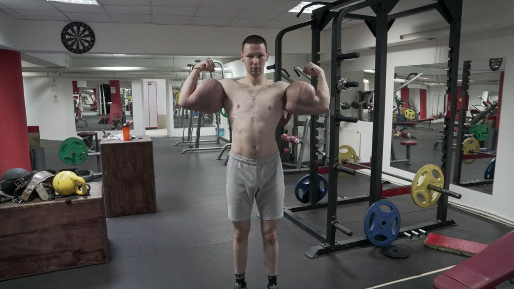 Kirill Tereshin has big biceps, but it takes more than muscles to win an MMA fight.